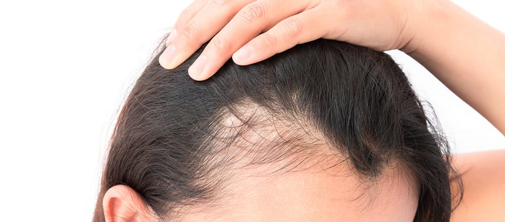 Lady with hair loss problem in scalp